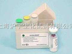 人血管紧张素ⅡELISA试剂盒